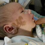 marcas o manchas de nacimiento