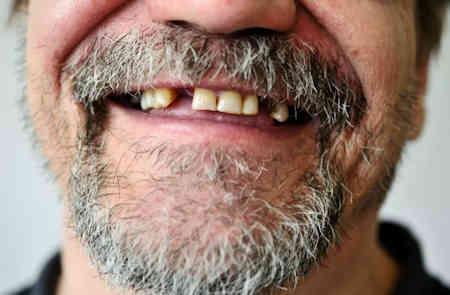 Los dientes son fusibles del cuerpo multidimensional